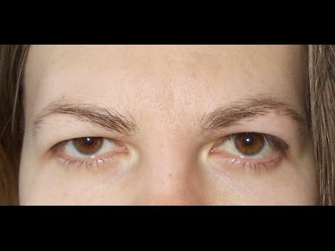 Белый отек глаз