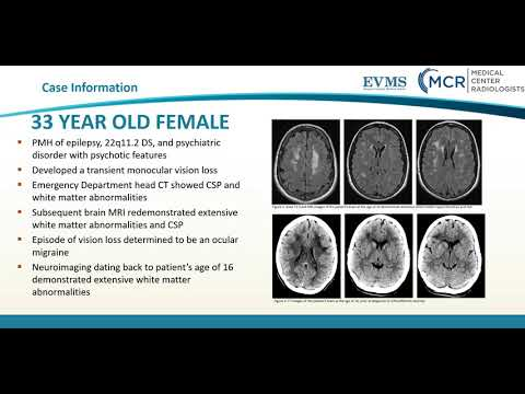 Thumbnail image of video presentation for Neuroimaging Findings in a Patient with 22q11.2 Deletion Syndrome DiGeorge Syndrome