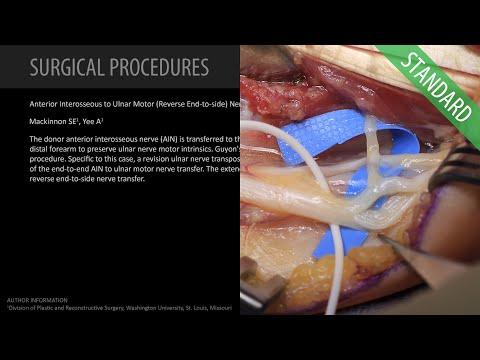 Przeniesienie (transfer) nerwu międzykostnego przedniego do części ruchowej nerwu łokciowego (metodą Reverse End to Side)