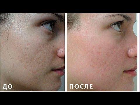 До и после крем отбеливающий от пятен после прыщей