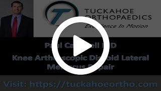 Arthroscopic Saucerization and Repair of Discoid Lateral Meniscal Tear