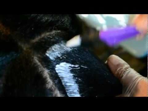 Mayroon bang isang lunas para sa buhok pagkawala