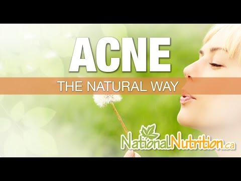 Natural Health Reviews - Acne