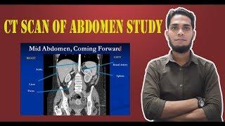 ct scan of abdomen study