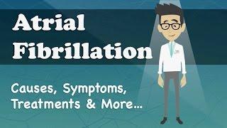 Atrial Fibrillation - Causes, Symptoms, Treatments & More…