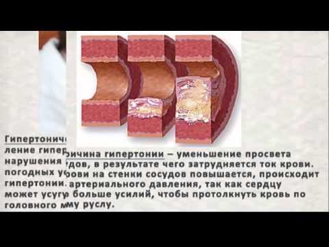 Реферат профилактика артериальной гипертонии