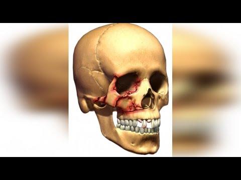 Перелом лицевой кости / Дорожный войны