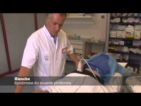 La distension des muscles du service de poitrine de lépine dorsale les symptômes