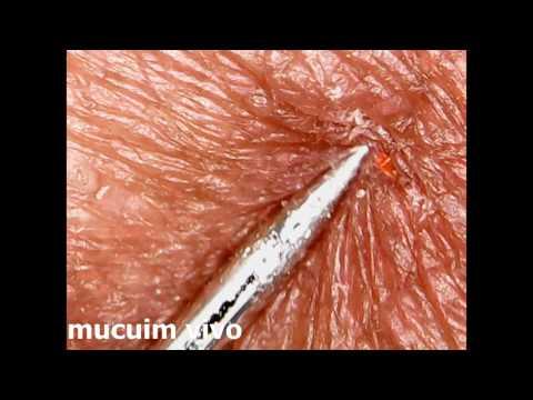 Tratamento de mycosis de pregos de uma foto