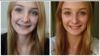 All About Braces: Before & After!