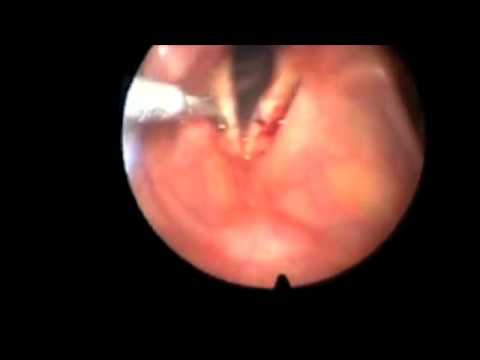 Laryngoscopy with Biopsy of Vocal Cord
