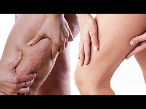 Les traitements de la varicosité sevastopol