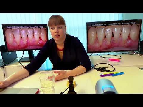 Хирургическое лечение рецессий десны в области зубов и имплантатов. Часть 2