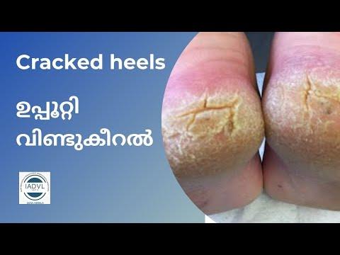 Cracked feet, ഉപ്പൂറ്റി വിണ്ടു കീറൽ
