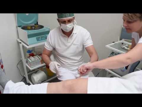 Chisturi în durerea articulațiilor genunchiului