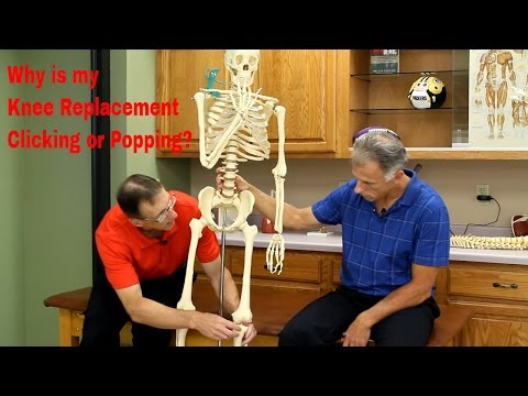 Why is your Knee Replacement Clicking, Popping, or Clunking??