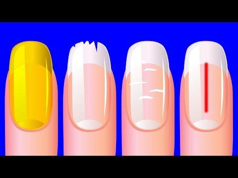 Что Ногти Расскажут о Вашем Здоровье