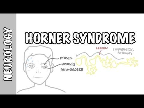 Zespół Hornera - anatomia, przyczyny, patofizjologia, diagnostyka