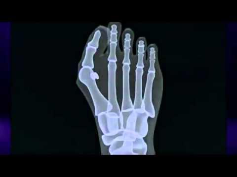 Ortopedyczne wkładki między palcami kości