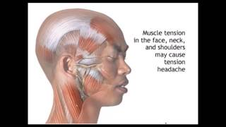 Diagnosis and Treatment of Tension Type Headaches