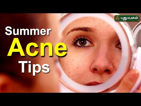 Tips to avoid summer Acne!  | அழகு கலை For Beauty | Morning Cafe | 27/04/2017