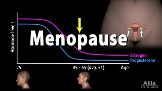Menopause, Perimenopause, Symptoms and Management, Animation.