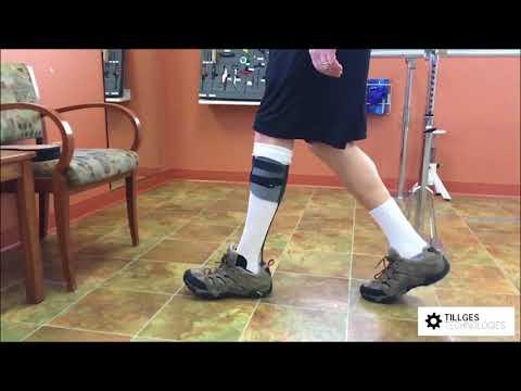 Propulsion Chopart Partial Foot Prosthesis