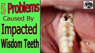 5 Problems Caused By Impacted Wisdom Teeth - Wisdom Teeth Problems