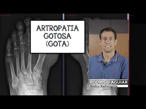 Cu articulațiile tireotoxicozelor rănite
