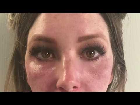 Kung bakit ang mga bata mukha freckles