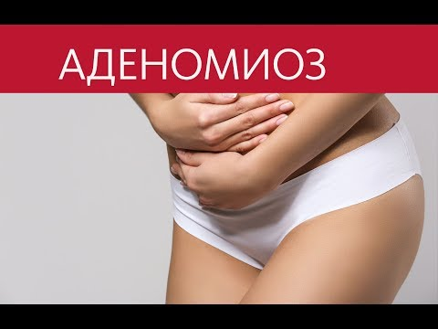 Аденомиоз и его симптомы