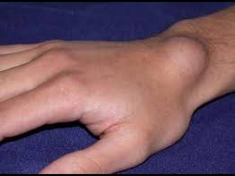 Beng mit zervikaler Osteochondrose
