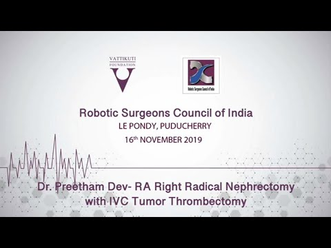 RA Right Radical Nephrectomy with IVC Thrombectomy