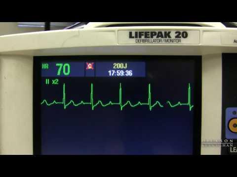 Metotreksat i hipertenzija