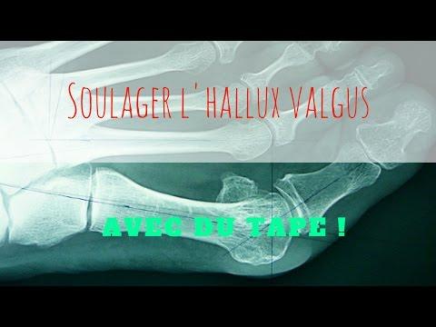 Valgus บวกจาก Medicus
