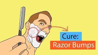 9 Fastest Ways to Get Rid of Razor Bumps