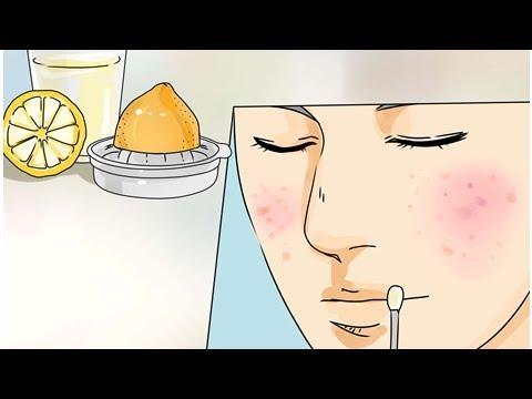 Die Tabletten eritromizin von den Pickeln auf der Person die Rezensionen