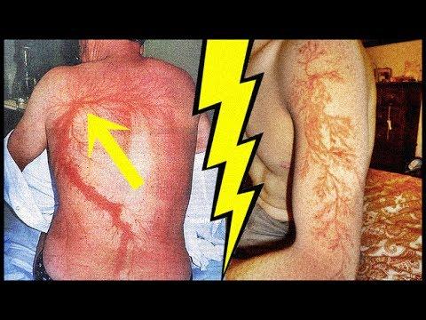 Adolescenții bolii osguda-schlatter și articulația genunchiului