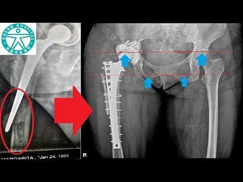 Эндопротезирование тазобедренного сустава в Корее. Госпиталь Чонг