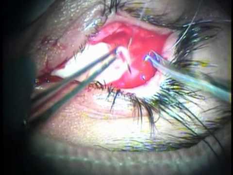 Rekonstrukcja oczodołu z przeszczepu błony śluzowej