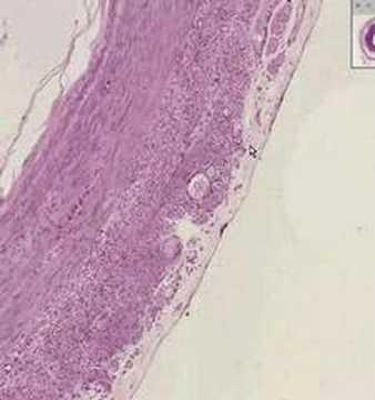 Cancer mamar tratament medicamentos