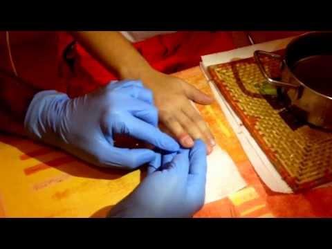 Servizi di prostitute massaggio prostatico