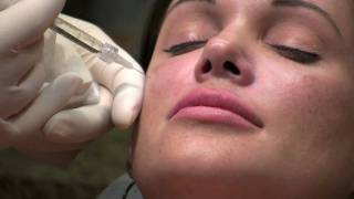 Liquid Midface Lift (Cheek Augmentation with Perlane)