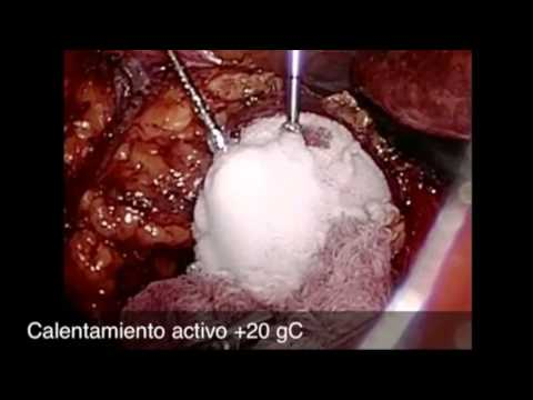 Multivitaminas para el cáncer de próstata