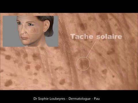La substance blanchissant la peau