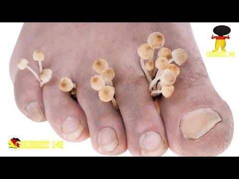 Das Analogon des Lackes lozeril für die Nägel von gribka