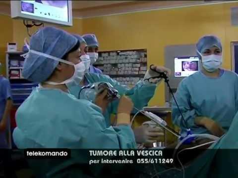 Anestetizzare il cancro alla prostata