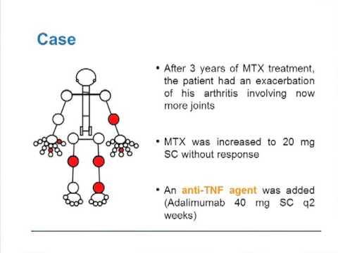 Atopitchesky la dermatite mkb