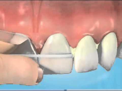 Αφαίρεση πλάκας με οδοντικό νήμα
