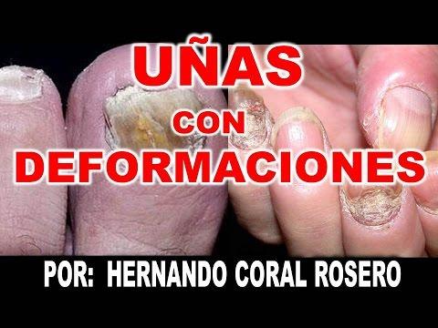Sanar el hongo sobre los dedos de los pies